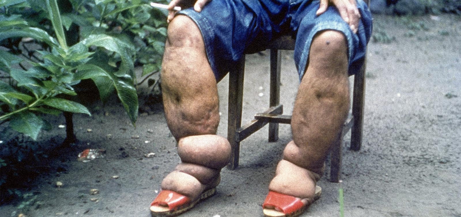 Elephantiasis of leg due to filariasis, in Luzon, Philippines.